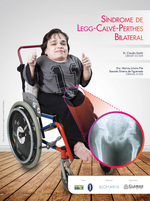 Síndrome de Legg-Calvé-Perthes Bilateral